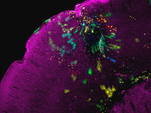 Astrocyte Flashes of brilliance in the brain – the best Neuroscience images of 2013