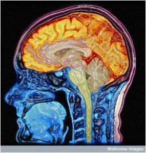 oNE 285x300 Can a brain scan reveal your true age?