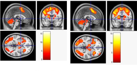 Li et al. (2014) Acute Aerobic Exercise Increased Cortical Activity during Working Memory: A Functional MRI Study in Female College Students. PLoS One  9(6): e99222. Published online Jun 9, 2014. doi:  10.1371/journal.pone.0099222
