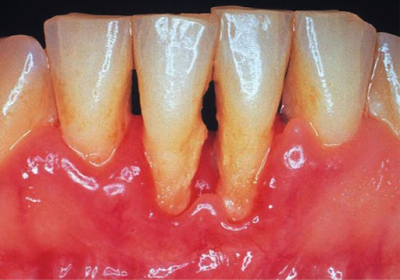 Figure 2 - Periodontitis - A problem for all, but one that is more worrying for diabetics
